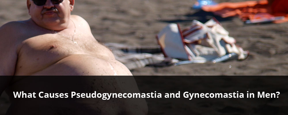 causes-of-pseudogynecomastia